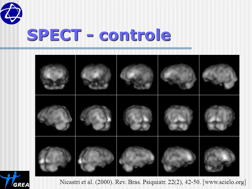 SPECT - controle Nicastri et al. (2000). Rev. Bras. Psiquiatr. 22(2), 42-50. [www.scielo.org]